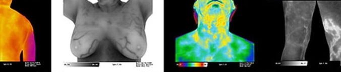 What's so good about Thermography?