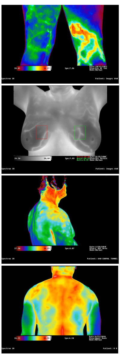 Medical Infrared Imaging Equipment